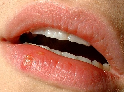 How Does Oral Herpes Transmission Occur?