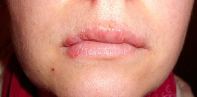 Herpes Virus In Mouth